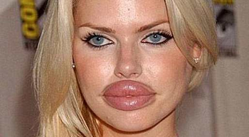 唇の整形画像.png