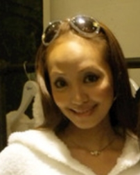 神田うの額の整形画像.png